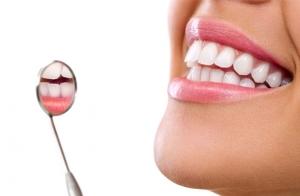 Limpieza dental 15,90 €